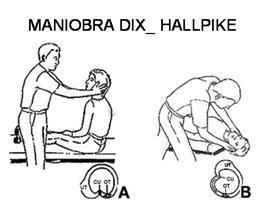 maniobra_dix_hallpike